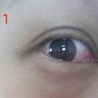 Bio-Aquacel Eye Safe